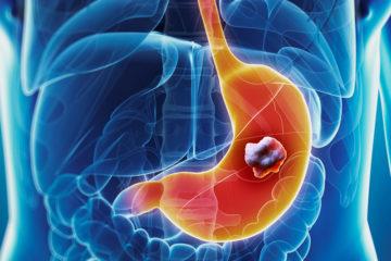 Loại trừ vi khuẩn Hp giúp giảm tỷ lệ Ung thư dạ dày tới 40%