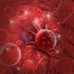 Cơ chế chuyển hóa từ Loét dạ dày sang Ung thư dạ dày