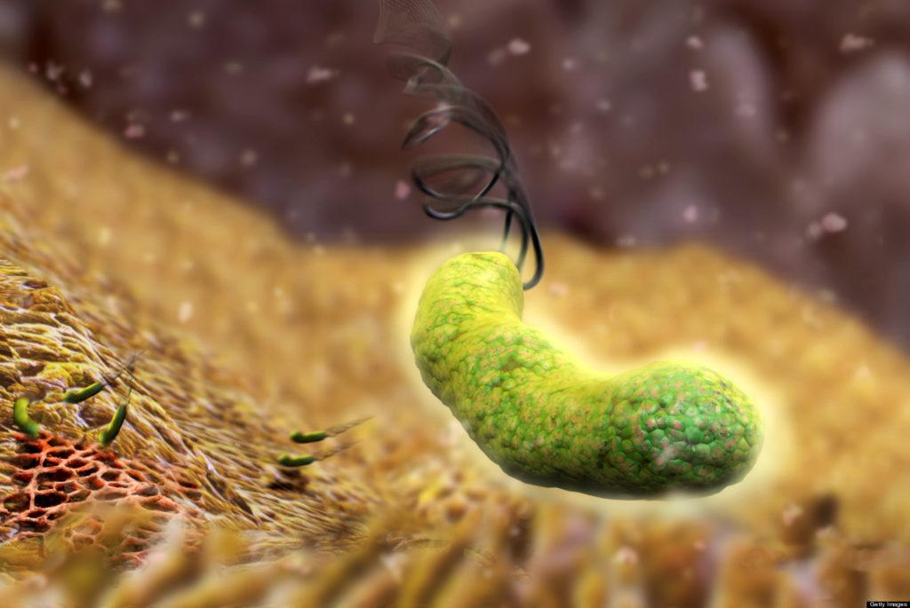 Nhiễm vi khuẩn Hp có thể mắc bệnh gì? 1