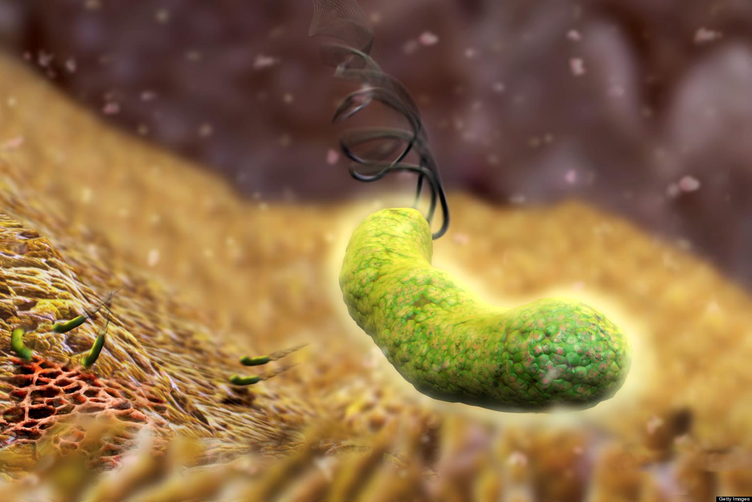 Nhiễm vi khuẩn Hp có thể mắc bệnh gì?