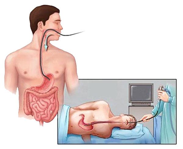 Cách thức chẩn đoán 1