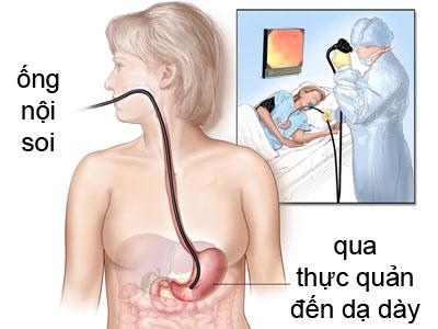 Nội soi làm sinh thiết kiểm tra vi khuẩn Hp 1