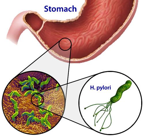 Điều trị và phòng ngừa Loét dạ dày tá tràng do H. pylori