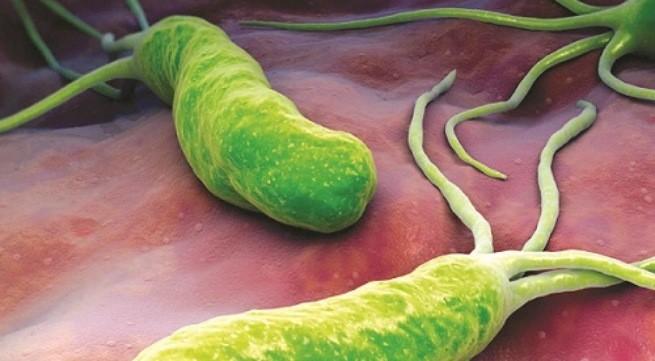 Vi khuẩn H.pylori, phát hiện lịch sử đối với bệnh dạ dày 1