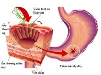 Vi khuẩn Hp là thủ phạm chính gây bệnh dạ dày