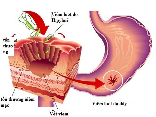 Vi khuẩn Hp là thủ phạm chính gây bệnh dạ dày 1