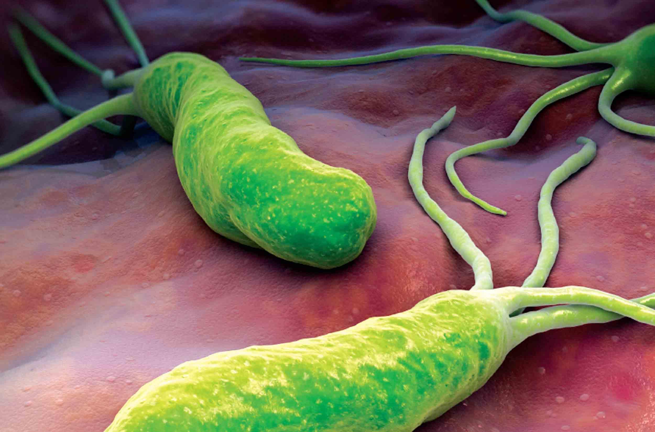 Kết quả hình ảnh cho vi khuẩn hp