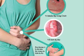 Dùng kháng thể để trợ giúp trong điều trị viêm loét dạ dày tá tràng