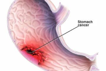 Ung thư dạ dày có thể chữa khỏi được không?