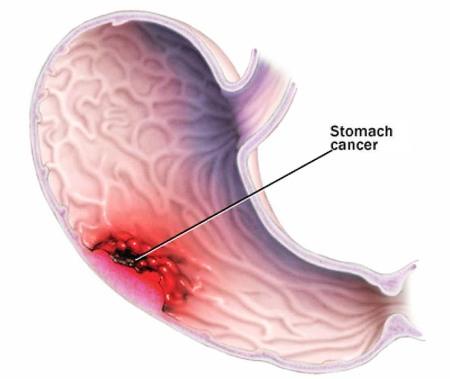 Các nguyên nhân Ung thư dạ dày 1