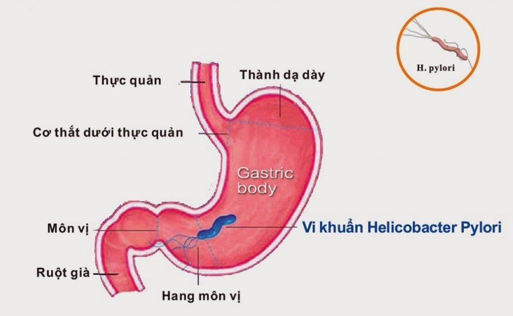 Nguyên nhân gây viêm loét dạ dày 1