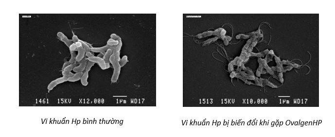 GastimunHP – giải pháp mới cho khuẩn Hp kháng thuốc 1