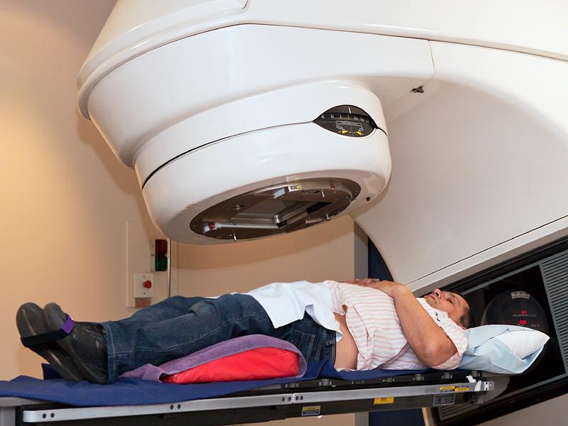 Điều trị Ung thư dạ dày bằng hóa trị liệu 1