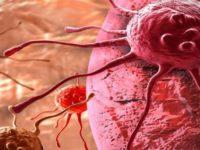 Triệu chứng nhận biết Ung thư dạ dày