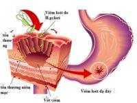Tổng quan về Viêm dạ dày mạn tính