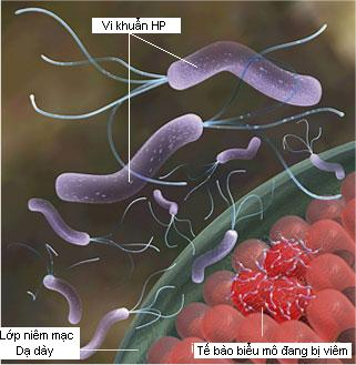 Đặc tính của vi khuẩn Hp 2