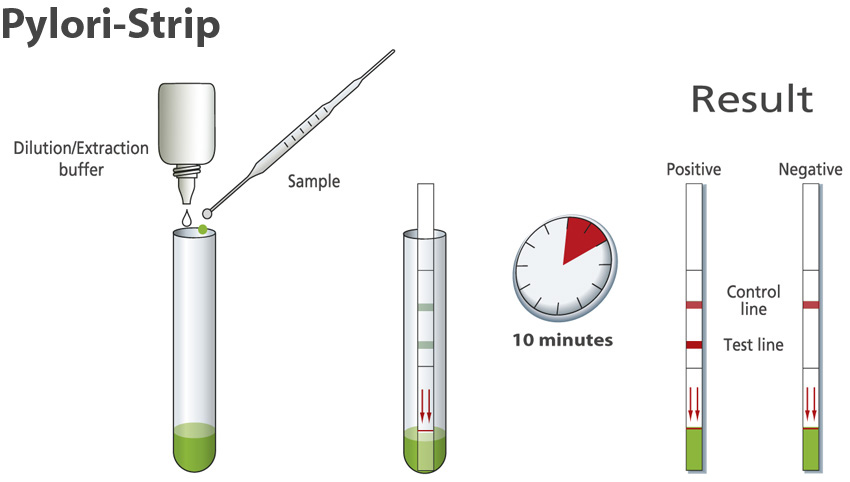 Xét nghiệm phân tìm vi khuẩn Hp cần chuẩn bị gì?