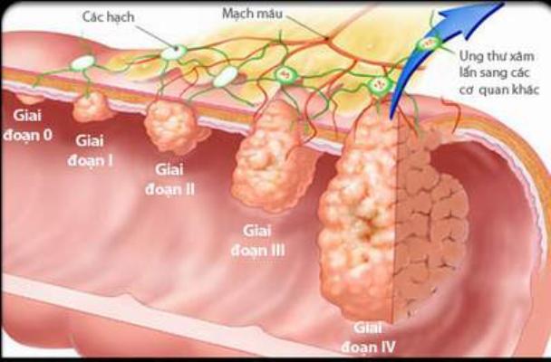 Ung thư dạ dày và các giai đoạn phát triển 1