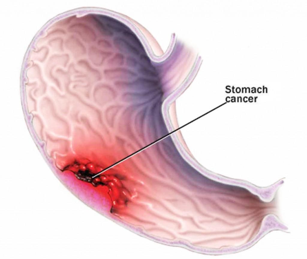 Những ai có nguy cơ mắc bệnh ung thư dạ dày cao? 1