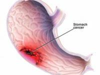 Những ai có nguy cơ mắc bệnh ung thư dạ dày cao?