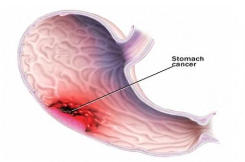 Vi khuẩn Hp còn được gọi là vi khuẩn Ung thư dạ dày 1