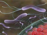 Diệt vi khuẩn Hp để né ung thư dạ dày