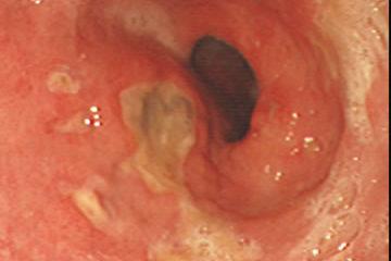 Diệt vi khuẩn Hp để tránh biến chứng của bệnh Viêm dạ dày