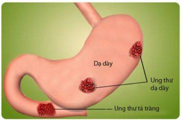 Các phương pháp sàng lọc và phát hiện sớm ung thư dạ dày