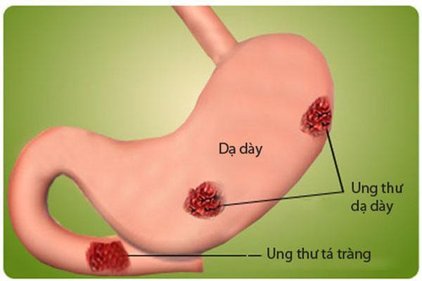 Các phương pháp chẩn đoán Ung thư dạ dày 1