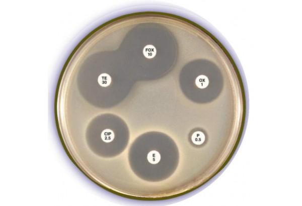 Nhận biết vi khuẩn Hp kháng thuốc bằng cách nào