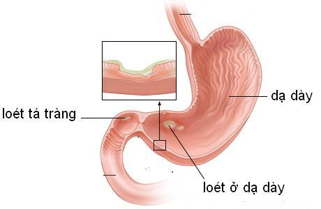 Một số nhân tố dẫn tới chứng bệnh đau bao tử