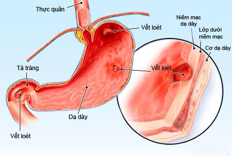 Biến chứng viêm loét dạ dày – JOYFM ngày 6-12-2015