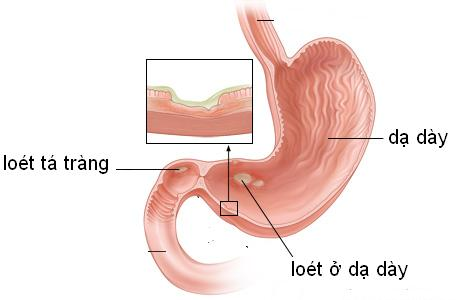 Chẩn đoán bệnh viêm loét dạ dày tá tràng 1