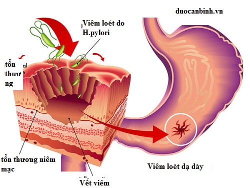 Thuốc Nam chữa viêm loét dạ dày tá tràng 1