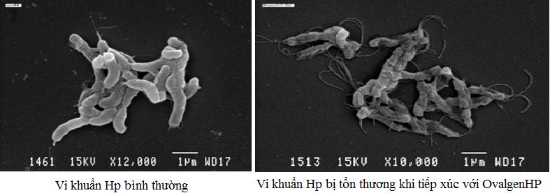 Phương pháp điều trị bệnh lý có vi khuẩn Hp kháng thuốc 1