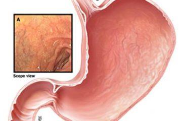 Tổng quan về Viêm teo dạ dày – Nguyên nhân và cách điều trị