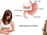 Bệnh viêm loét dạ dày tá tràng ở trẻ em cần điều trị sớm