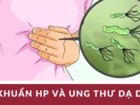 Vi khuẩn HP và ung thư dạ dày – CT sức khỏe cho mọi nhà ngày 25-4-2017