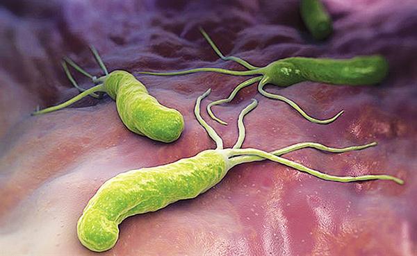 Loại bỏ vi khuẩn Hp – chìa khóa trong chiến lược phòng ngừa sớm ung thư dạ dày 1