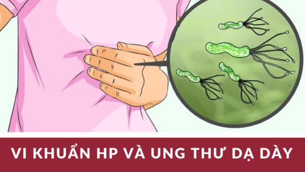 Vi khuẩn Hp sống được bao lâutrong dạ dày 1