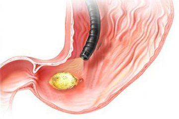 Ung thư dạ dày giai đoạn 2 và những điều cần biết