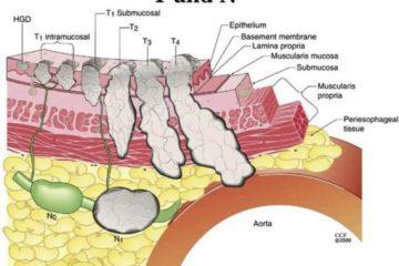 Ung thư dạ dày giai đoạn 3 là gì?