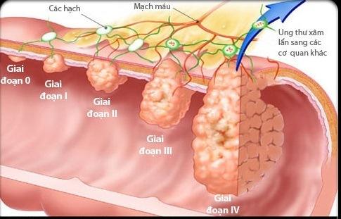 Người bệnh ung thư dạ dày giai đoạn cuối nên ăn gì? 1