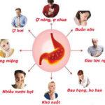 Các phương pháp chuẩn đoán bệnh dạ dày không cần nội soi