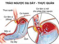 Bệnh trào ngược dạ dày thực quản – Những điều cần biết