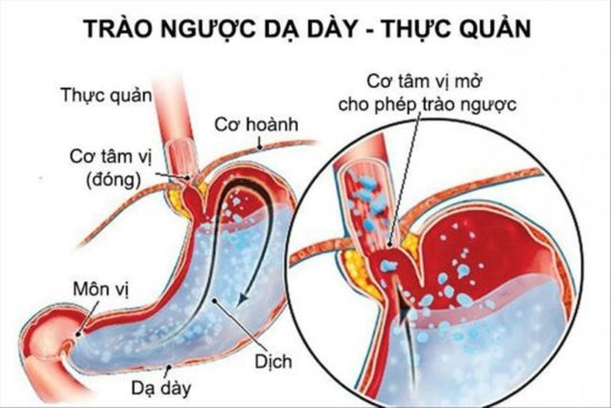 Bệnh trào ngược dạ dày thực quản - Những điều cần biết 1