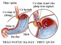 Tìm hiểu chuyên sâu hơn về trào ngược dạ dày thực quản