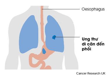Ung thư dạ dày di căn sang các cơ quan nào? 3