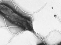 Vi khuẩn HP có diệt được không? Cách diệt vi khuẩn HP