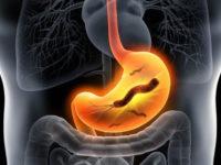 Chuyên gia nói gì về việc điều trị viêm loét dạ dày do vi khuẩn Hp hiện nay?